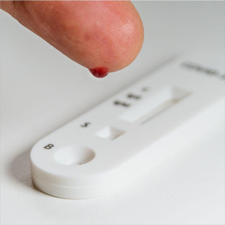 IgG Antibody Test London